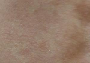 ジベル 薔薇色 粃 糠 と は 【症例写真】ジベルばら色粃糠疹の原因・症状・治療法
